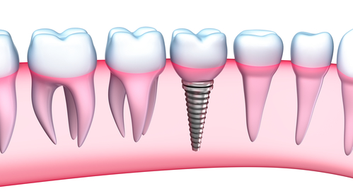 dental implant dentist in roseville ca