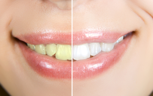 teeth whitening in roseville ca