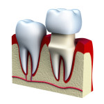 dental crowns roseville