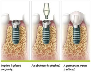 dental implant procedure roseville ca