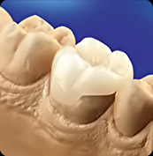 dental onlay in roseville ca
