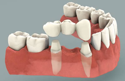 dental bridge roseville