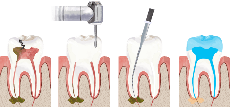 root-canal in roseville