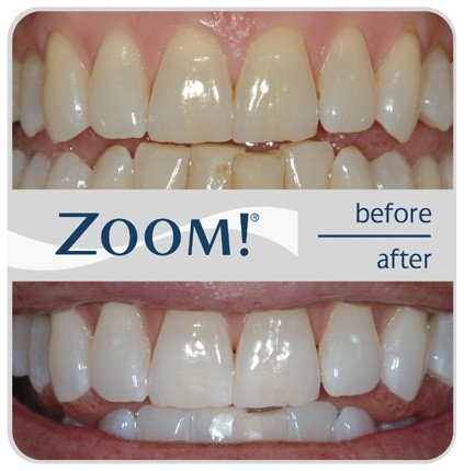 zoom teeth whitening roseville